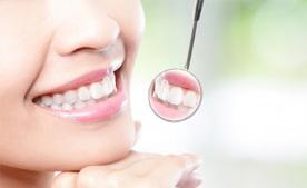 Odontologia en Torrevieja