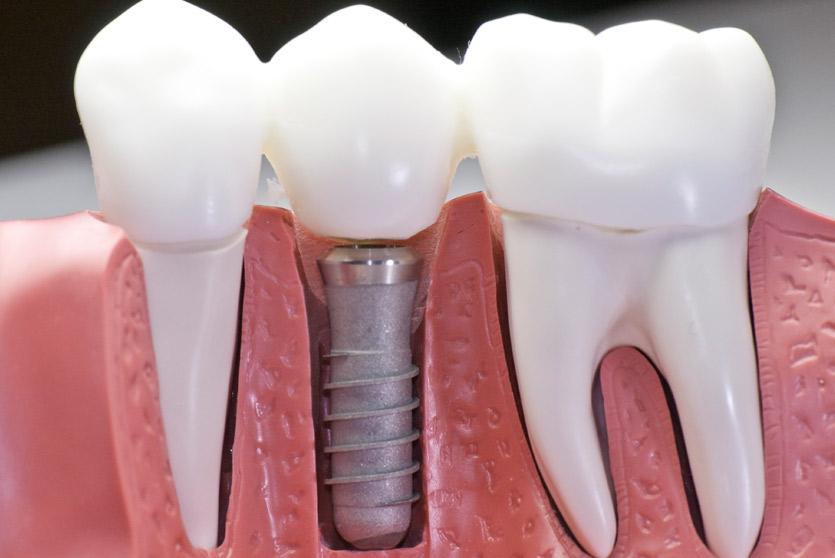 Como funciona el implante inmediato